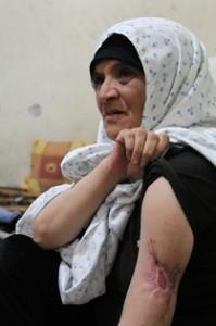Munira mostra la ferita al braccio, ricordo indelebile del giorno in cui ha perso la figlia (Jessica Chillemi/2013)