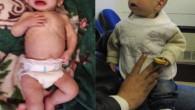 """Il corpo innaturalmente gonfio, gli occhi scavati e tristi. Khaled a 14 mesi """"è stato testimone di una sofferenza che la maggior parte di noi non sperimenterà probabilmente nell'arco di […]"""